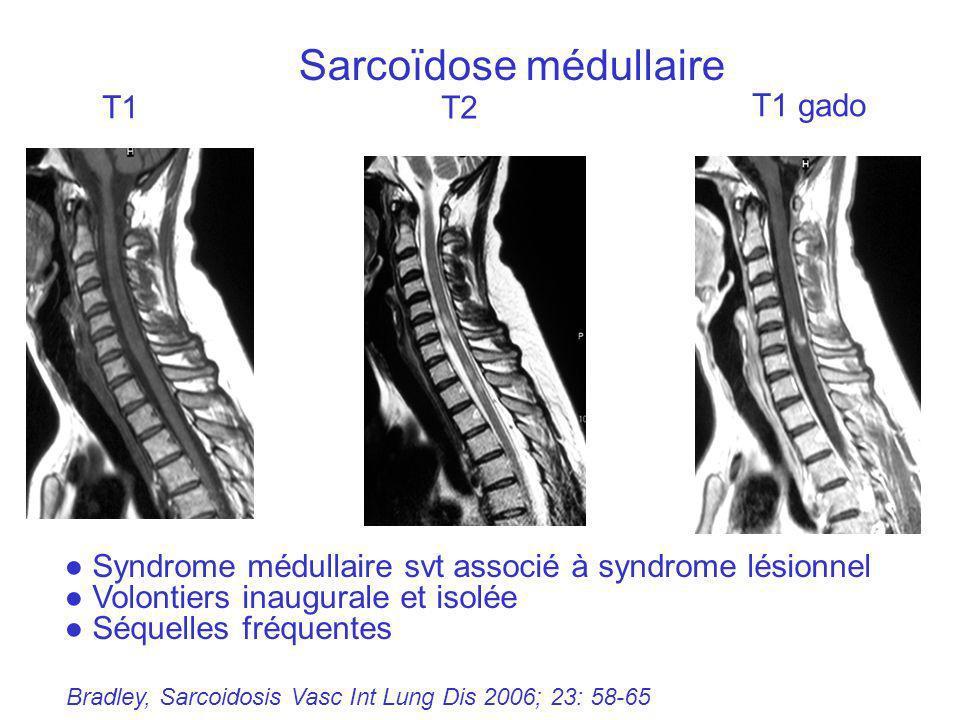 Sarcoïdose médullaire Bradley, Sarcoidosis Vasc Int Lung Dis 2006; 23: 58-65 Syndrome médullaire svt associé à syndrome lésionnel Volontiers inaugural