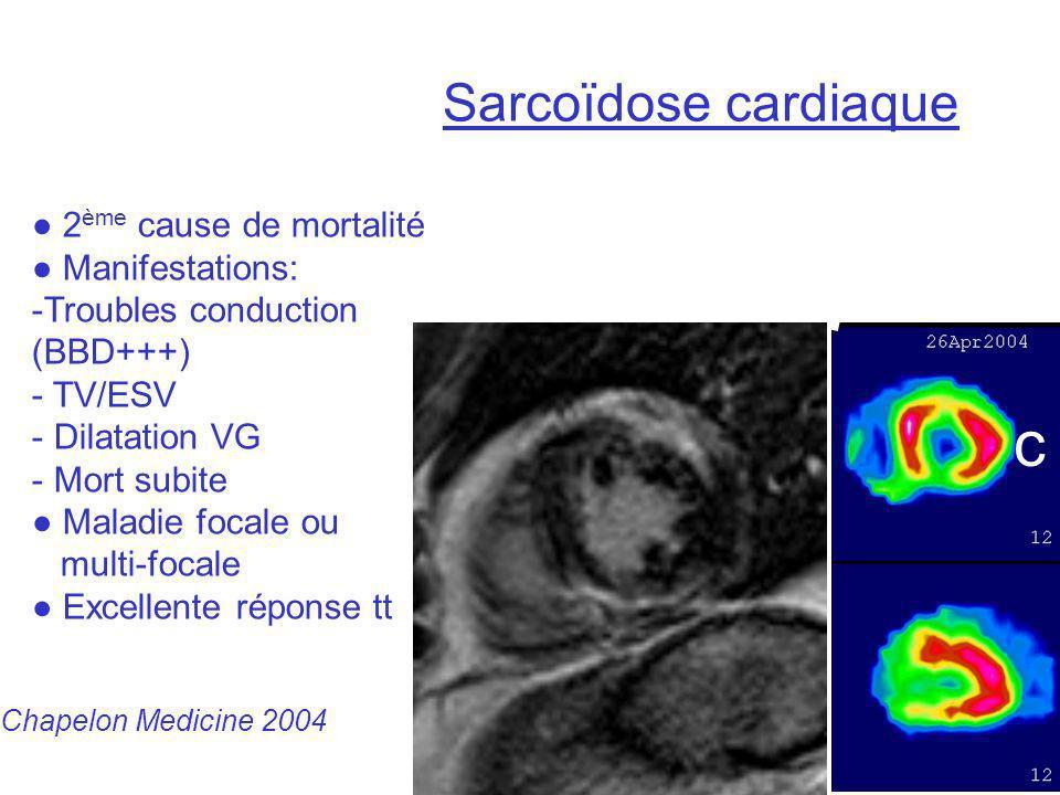 a b c Sarcoïdose cardiaque 2 ème cause de mortalité Manifestations: -Troubles conduction (BBD+++) - TV/ESV - Dilatation VG - Mort subite Maladie focal