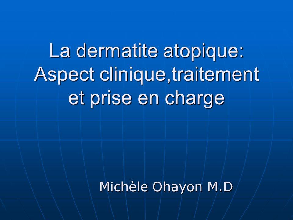 La dermatite atopique: Aspect clinique,traitement et prise en charge Michèle Ohayon M.D