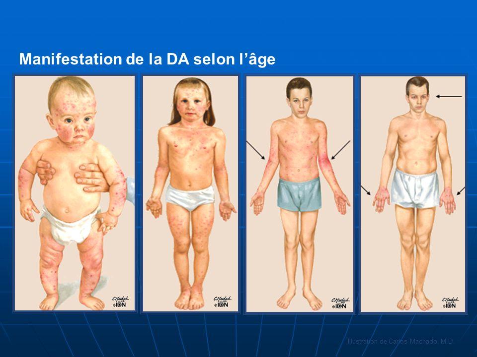 Manifestation de la DA selon lâge Illustration de Carlos Machado, M.D.