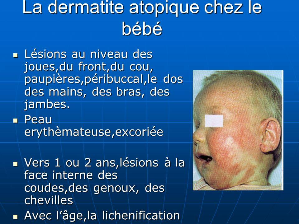 La dermatite atopique chez le bébé Lésions au niveau des joues,du front,du cou, paupières,péribuccal,le dos des mains, des bras, des jambes.