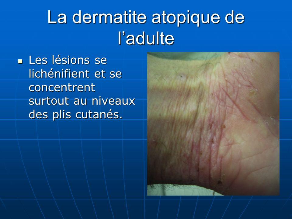 La dermatite atopique de ladulte Les lésions se lichénifient et se concentrent surtout au niveaux des plis cutanés.