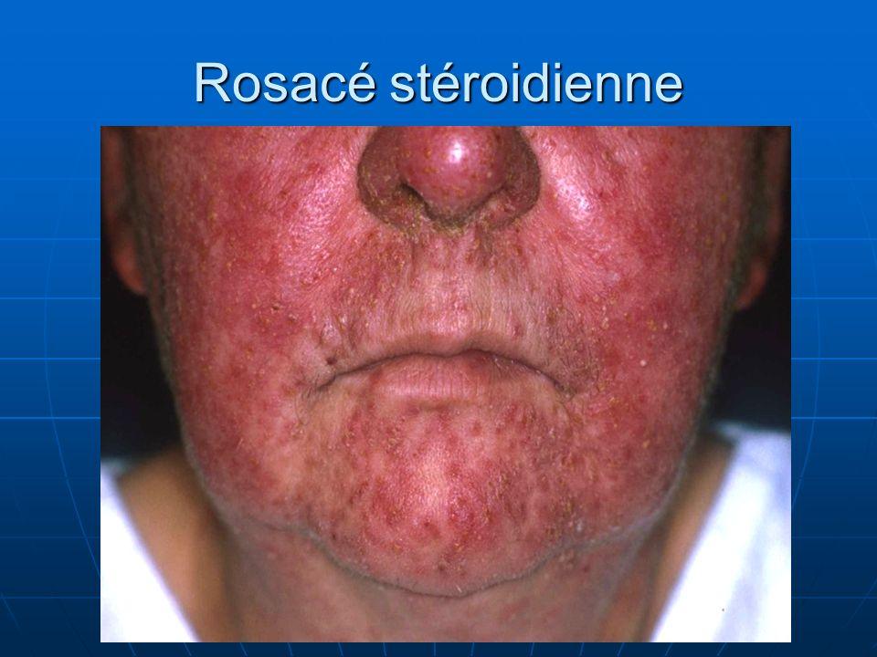 Rosacé stéroidienne