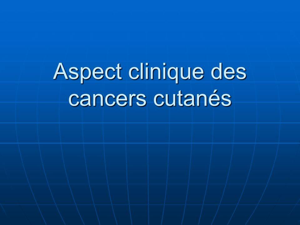 Aspect clinique des cancers cutanés