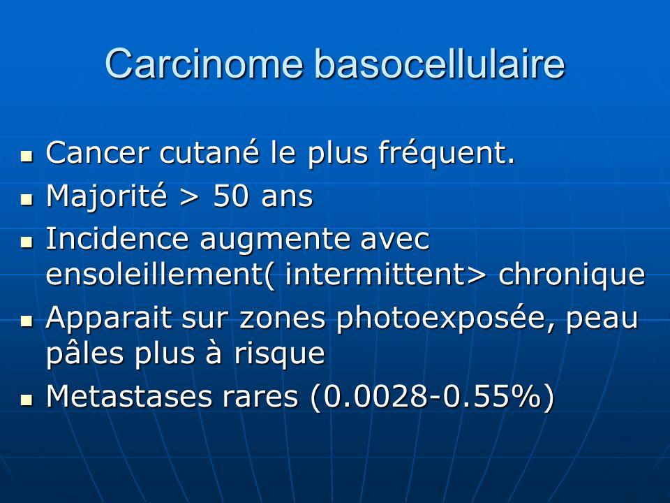 Carcinome basocellulaire Cancer cutané le plus fréquent.