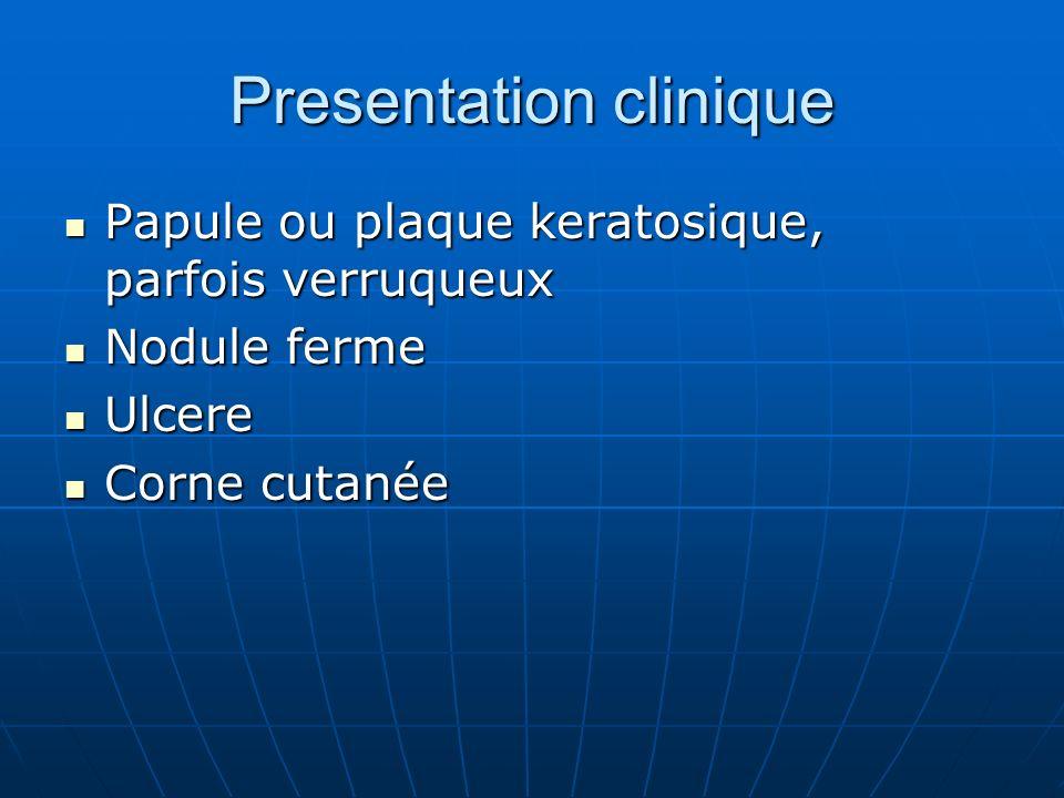 Presentation clinique Papule ou plaque keratosique, parfois verruqueux Papule ou plaque keratosique, parfois verruqueux Nodule ferme Nodule ferme Ulcere Ulcere Corne cutanée Corne cutanée
