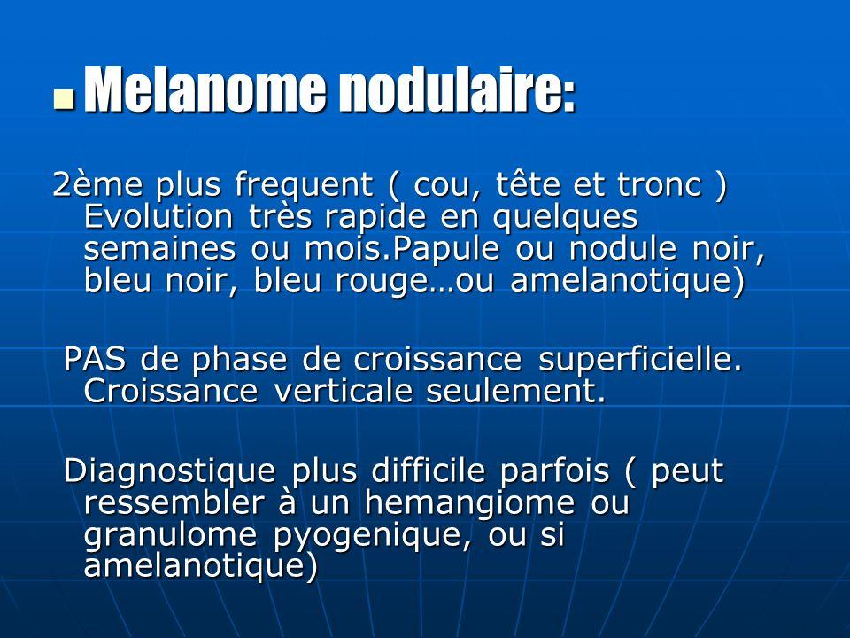 Melanome nodulaire: Melanome nodulaire: 2ème plus frequent ( cou, tête et tronc ) Evolution très rapide en quelques semaines ou mois.Papule ou nodule noir, bleu noir, bleu rouge…ou amelanotique) PAS de phase de croissance superficielle.