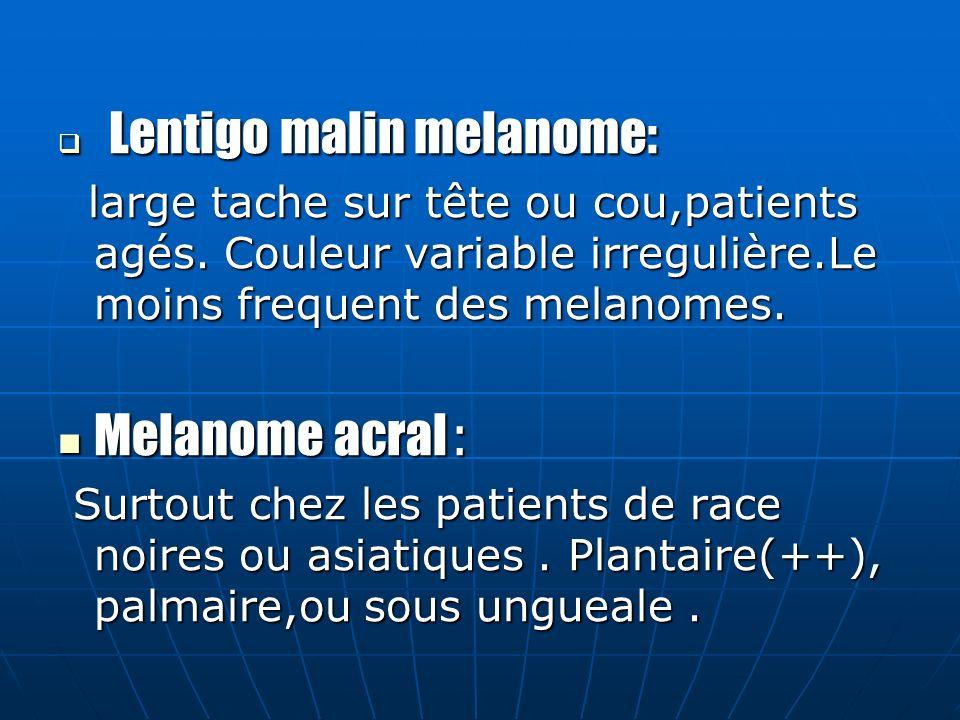 Lentigo malin melanome: Lentigo malin melanome: large tache sur tête ou cou,patients agés.