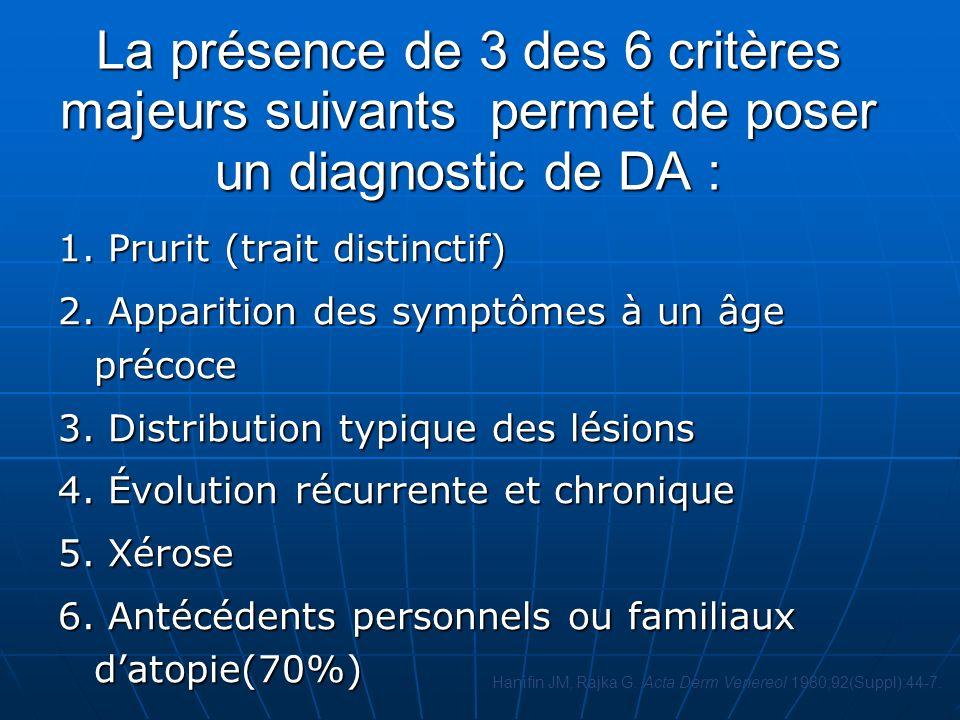 La présence de 3 des 6 critères majeurs suivants permet de poser un diagnostic de DA : 1.