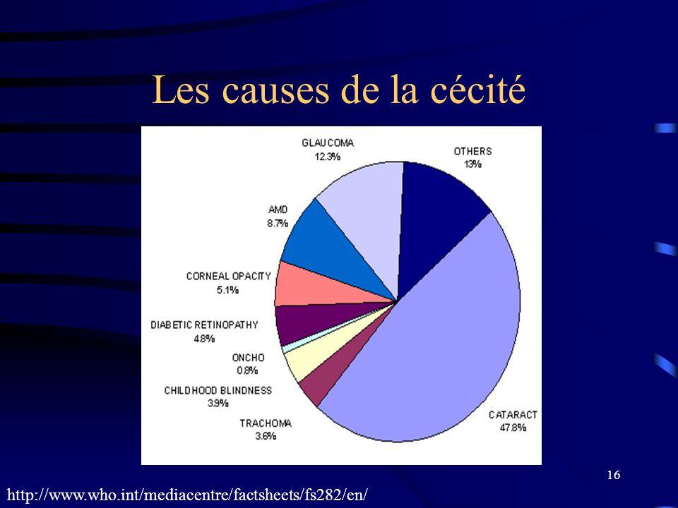 16 Les causes de la cécité http://www.who.int/mediacentre/factsheets/fs282/en/
