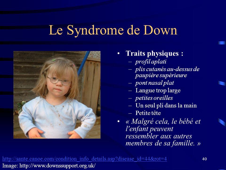 40 Le Syndrome de Down Traits physiques : –profil aplati –plis cutanés au-dessus de paupière supérieure –pont nasal plat –Langue trop large –petites o