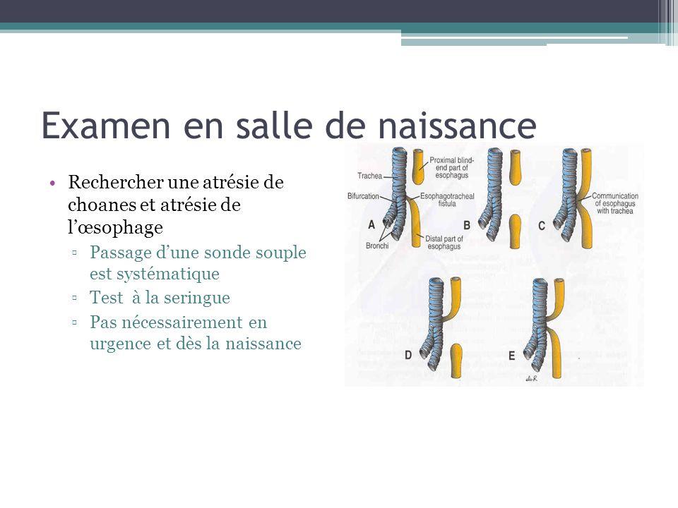 Examen en salle de naissance Rechercher une atrésie de choanes et atrésie de lœsophage Passage dune sonde souple est systématique Test à la seringue P