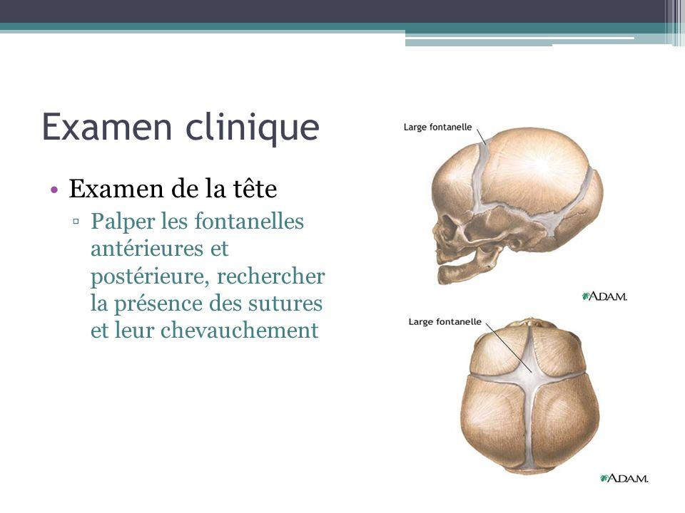 Examen clinique Examen de la tête Palper les fontanelles antérieures et postérieure, rechercher la présence des sutures et leur chevauchement