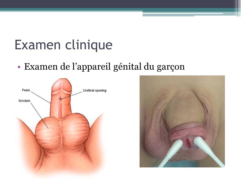Examen clinique Examen de lappareil génital du garçon