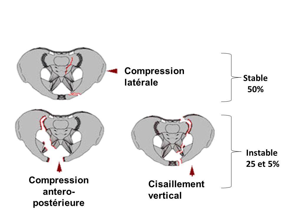 Yoon 2004: fuite de PCI à la TDM vs angiographie positive Se 66 à 90 %, Sp 85 à 98 % chez le patient stable ou stabilisé, lindication dune embolisation est portée par la TDM … à répéter Traumatisme du bassin : imagerie TDM +++