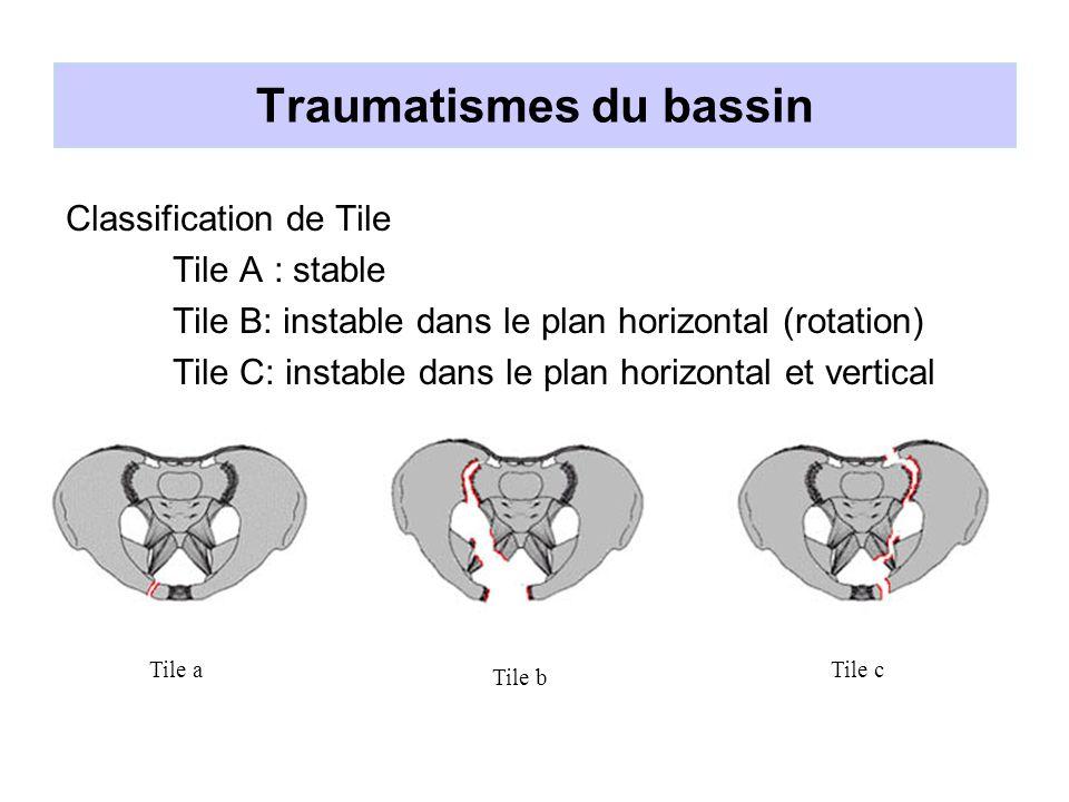Traumatismes du bassin Principale cause de décès : l hémorragie Pronostic : état hémodynamique lors de la prise en charge initiale.