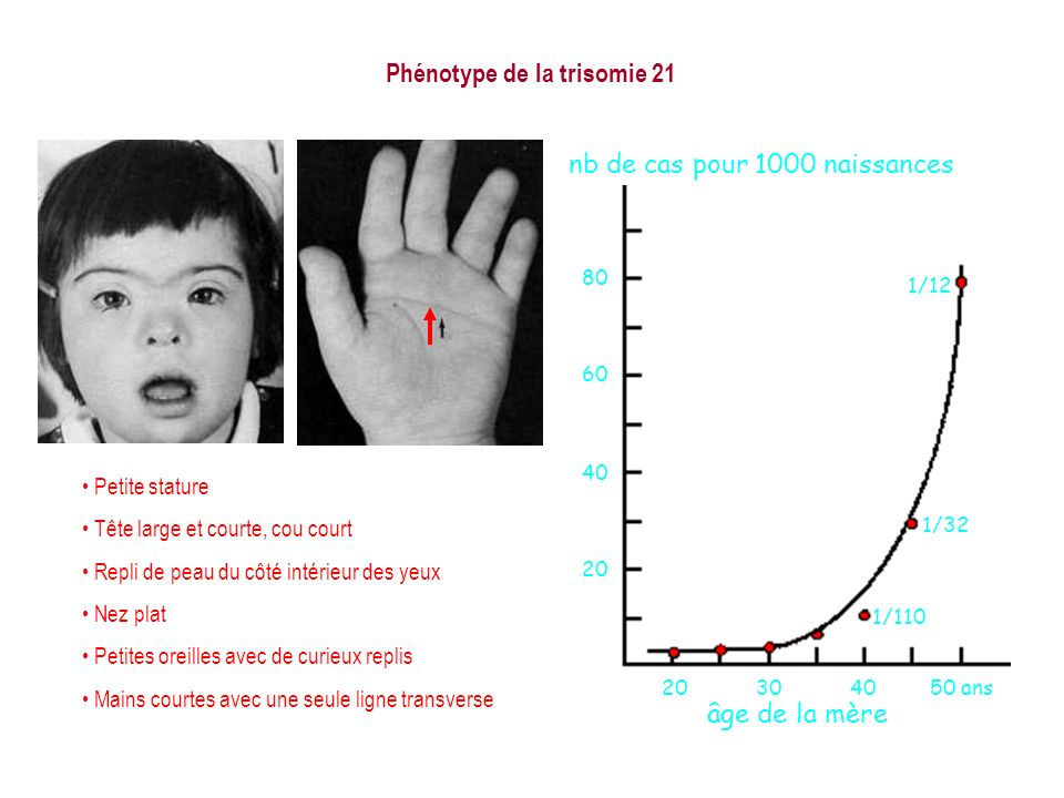 Phénotype de la trisomie 21 20304050 ans 20 40 60 80 1/12 1/32 1/110 nb de cas pour 1000 naissances âge de la mère Petite stature Tête large et courte