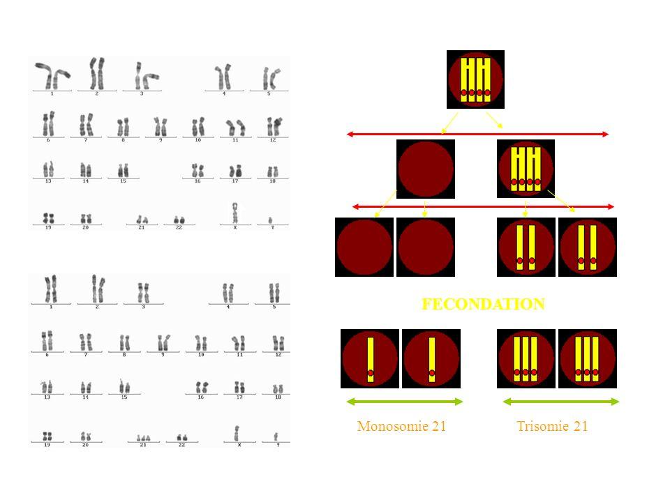 FECONDATION Monosomie 21Trisomie 21