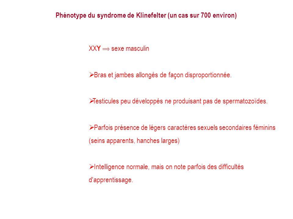 Phénotype du syndrome de Klinefelter (un cas sur 700 environ) XX Y sexe masculin Bras et jambes allongés de façon disproportionnée. Testicules peu dév