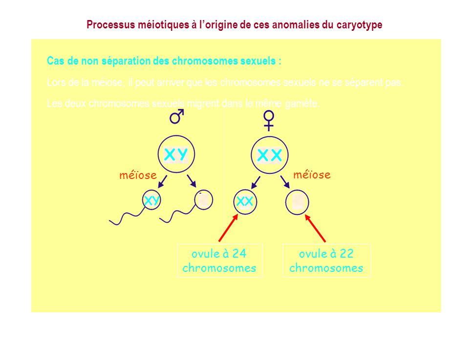 Cas de non séparation des chromosomes sexuels : Lors de la méiose, il peut arriver que les chromosomes sexuels ne se séparent pas. Les deux chromosome