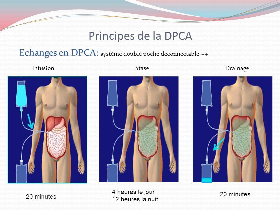 Principes de la DPCA Echanges en DPCA: système double poche déconnectable ++ Infusion Stase Drainage 20 minutes 4 heures le jour 12 heures la nuit 20