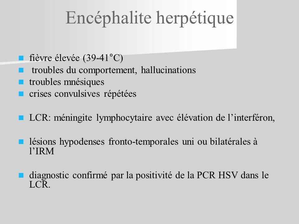 fièvre élevée (39-41°C) troubles du comportement, hallucinations troubles mnésiques crises convulsives répétées LCR: méningite lymphocytaire avec élév