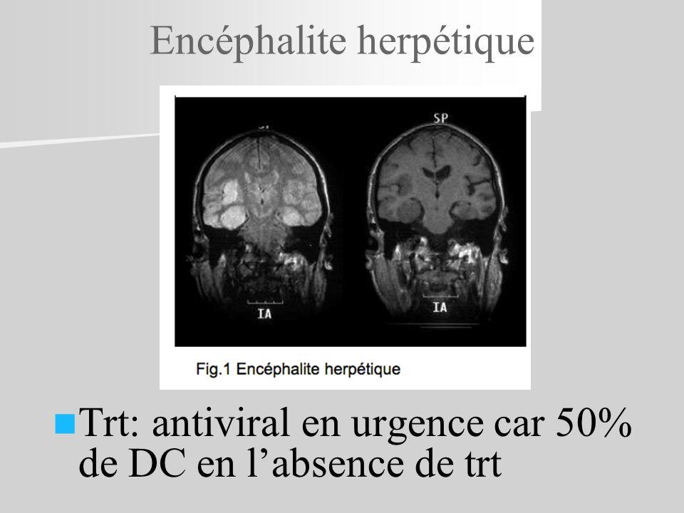 Encéphalite herpétique Trt: antiviral en urgence car 50% de DC en labsence de trt