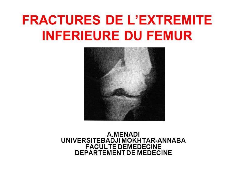 FRACTURES DE LEXTREMITE INFERIEURE DU FEMUR A.MENADI UNIVERSITEBADJI MOKHTAR-ANNABA FACULTE DEMEDECINE DEPARTEMENT DE MEDECINE
