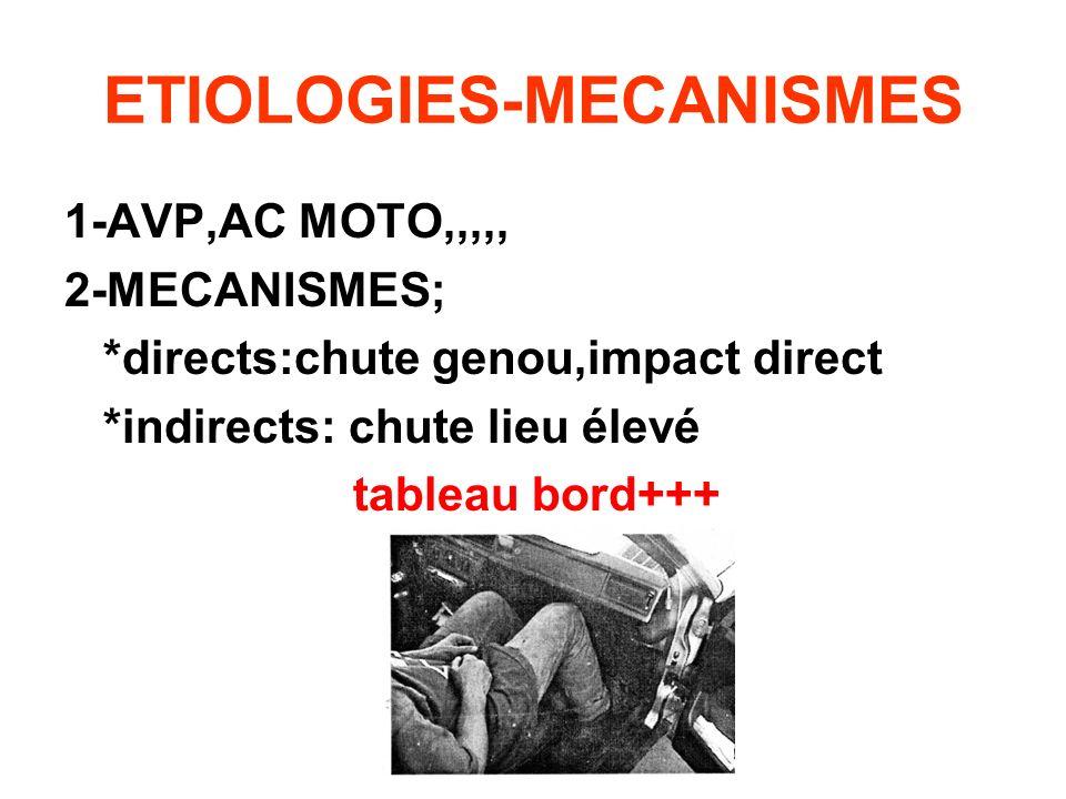 ETIOLOGIES-MECANISMES 1-AVP,AC MOTO,,,,, 2-MECANISMES; *directs:chute genou,impact direct *indirects: chute lieu élevé tableau bord+++