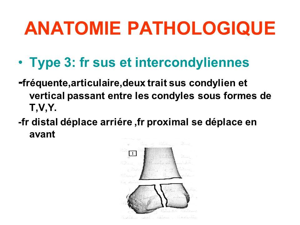 ANATOMIE PATHOLOGIQUE Type 3: fr sus et intercondyliennes - fréquente,articulaire,deux trait sus condylien et vertical passant entre les condyles sous