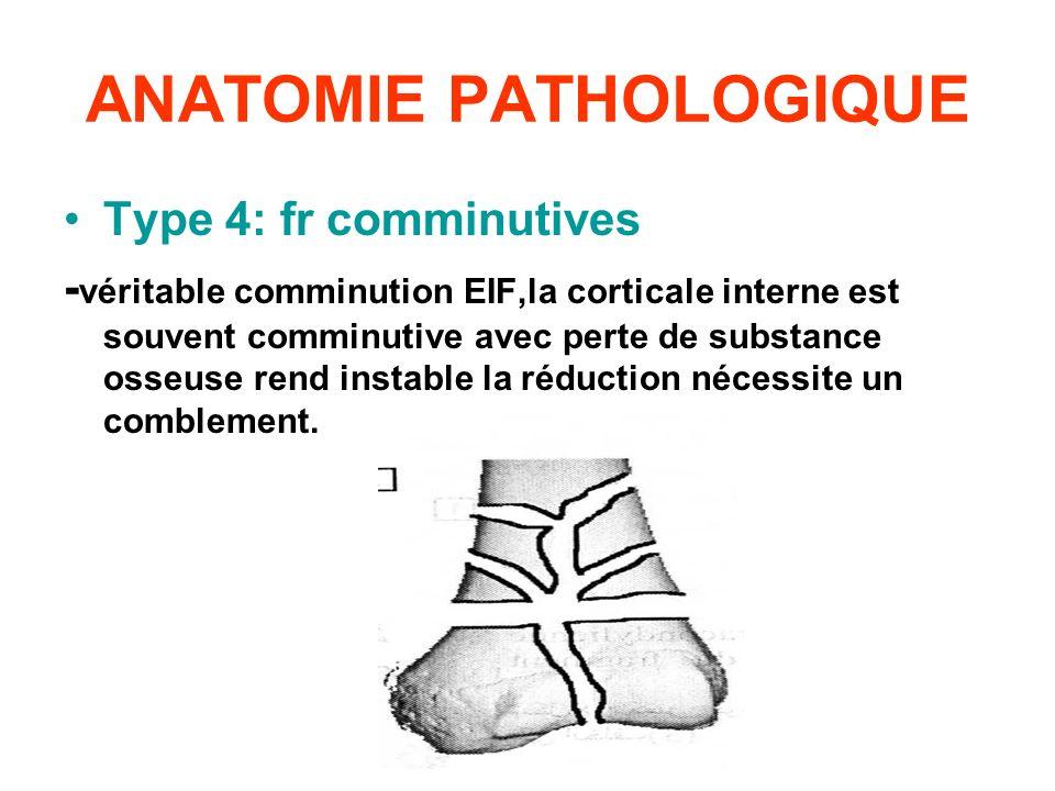 ANATOMIE PATHOLOGIQUE Type 4: fr comminutives - véritable comminution EIF,la corticale interne est souvent comminutive avec perte de substance osseuse