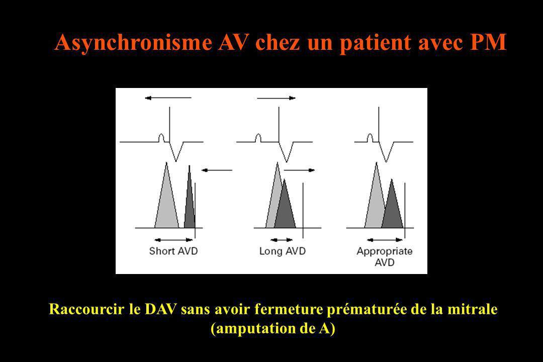 Raccourcir le DAV sans avoir fermeture prématurée de la mitrale (amputation de A)