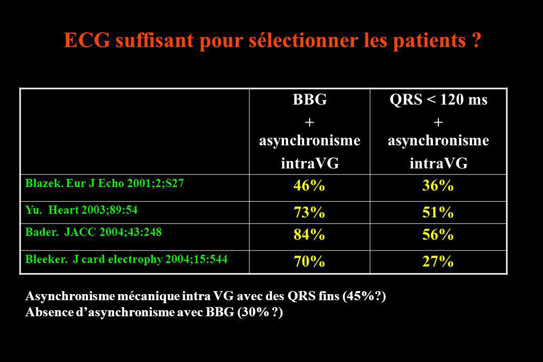ECG suffisant pour sélectionner les patients ? BBG + asynchronisme intraVG QRS < 120 ms + asynchronisme intraVG Blazek. Eur J Echo 2001;2;S27 46%36% Y