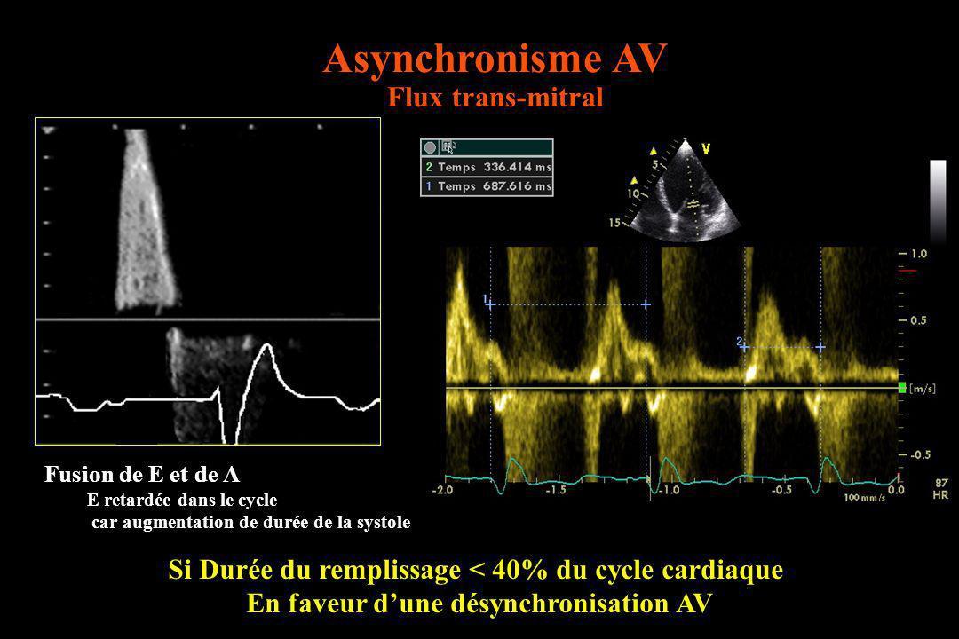 Asynchronisme AV Flux trans-mitral Si Durée du remplissage < 40% du cycle cardiaque En faveur dune désynchronisation AV Fusion de E et de A E retardée