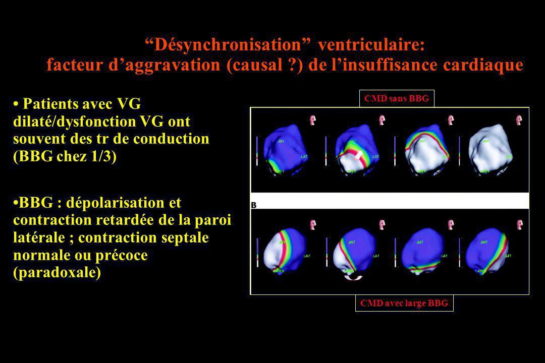 Désynchronisation ventriculaire: facteur daggravation (causal ?) de linsuffisance cardiaque Patients avec VG dilaté/dysfonction VG ont souvent des tr