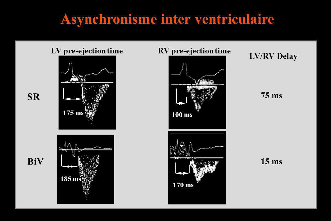 Asynchronisme inter ventriculaire LV/RV Delay 15 ms 75 ms 100 ms LV pre-ejection timeRV pre-ejection time 170 ms 185 ms 175 ms SR BiV
