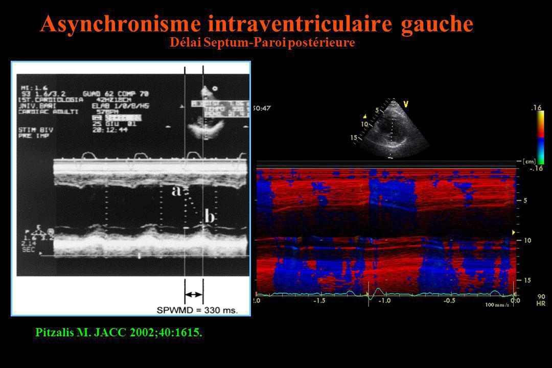Asynchronisme intraventriculaire gauche Délai Septum-Paroi postérieure Pitzalis M. JACC 2002;40:1615.
