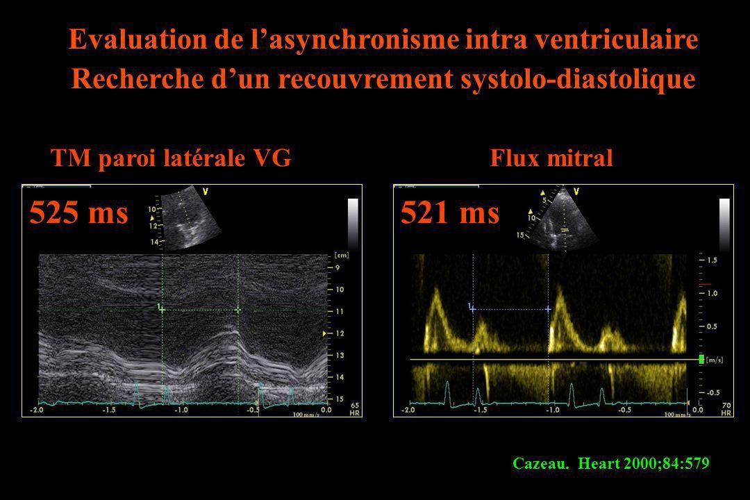 TM paroi latérale VGFlux mitral 525 ms521 ms Cazeau. Heart 2000;84:579 Evaluation de lasynchronisme intra ventriculaire Recherche dun recouvrement sys