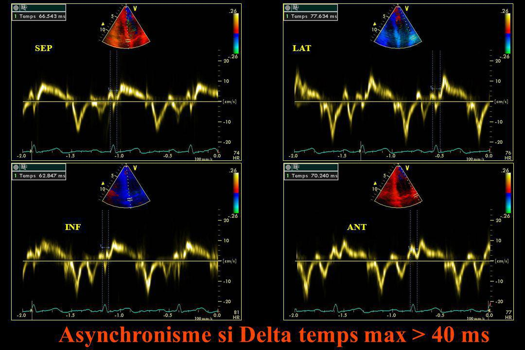 SEPLAT INFANT Asynchronisme si Delta temps max > 40 ms