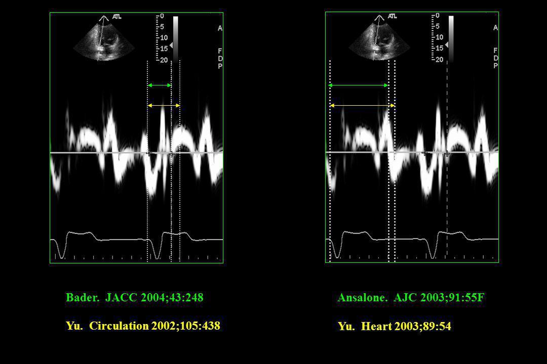 Bader. JACC 2004;43:248 Yu. Circulation 2002;105:438 Ansalone. AJC 2003;91:55F Yu. Heart 2003;89:54