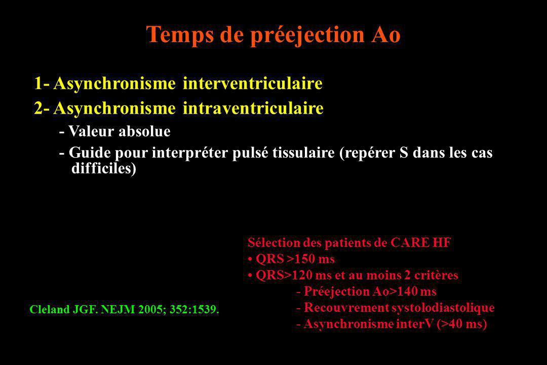 Cleland JGF. NEJM 2005; 352:1539. Sélection des patients de CARE HF QRS >150 ms QRS>120 ms et au moins 2 critères - Préejection Ao>140 ms - Recouvreme