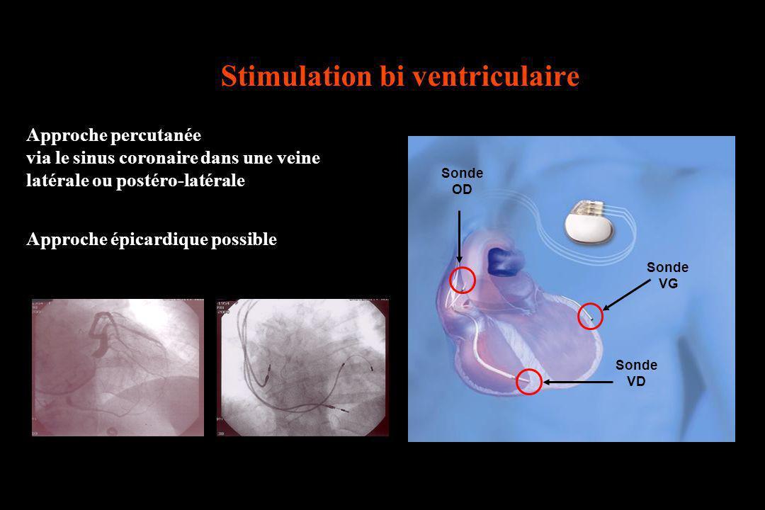 Approche percutanée via le sinus coronaire dans une veine latérale ou postéro-latérale Approche épicardique possible Sonde OD Sonde VD Sonde VG Stimul