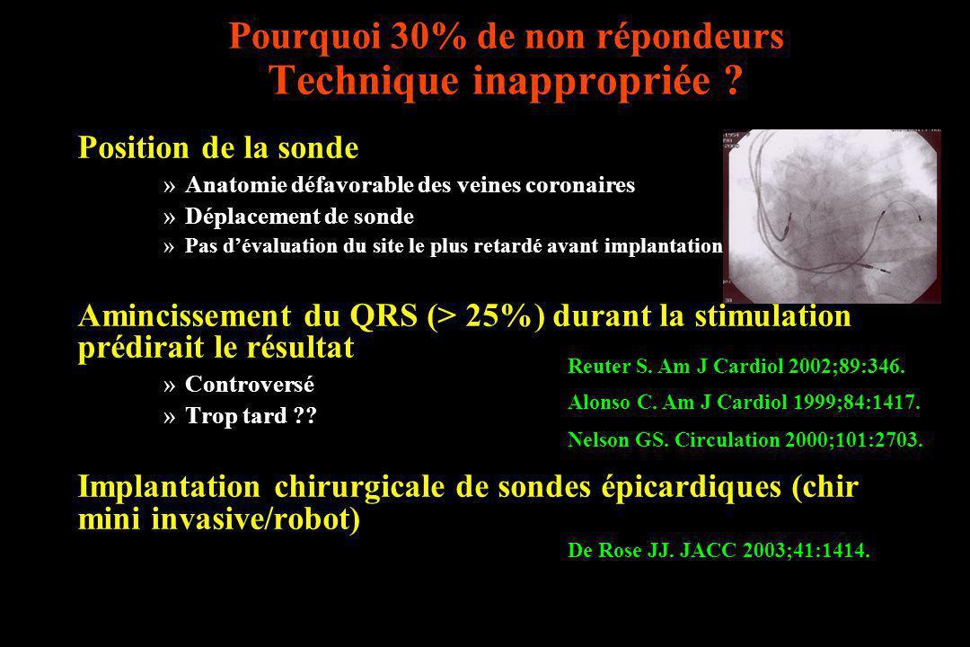 Pourquoi 30% de non répondeurs Technique inappropriée ? Position de la sonde »Anatomie défavorable des veines coronaires »Déplacement de sonde »Pas dé