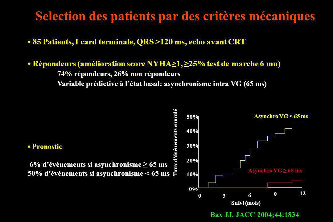 Selection des patients par des critères mécaniques Bax JJ. JACC 2004;44:1834 85 Patients, I card terminale, QRS >120 ms, echo avant CRT Répondeurs (am