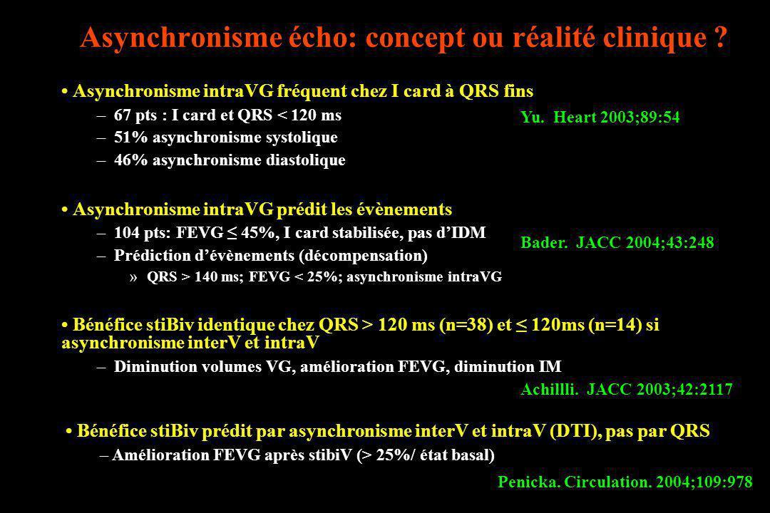 Asynchronisme écho: concept ou réalité clinique ? Asynchronisme intraVG fréquent chez I card à QRS fins –67 pts : I card et QRS < 120 ms –51% asynchro