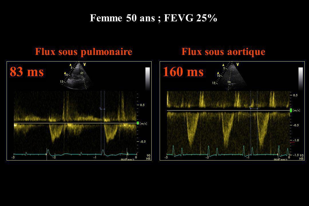 Femme 50 ans ; FEVG 25% Flux sous pulmonaireFlux sous aortique 83 ms160 ms