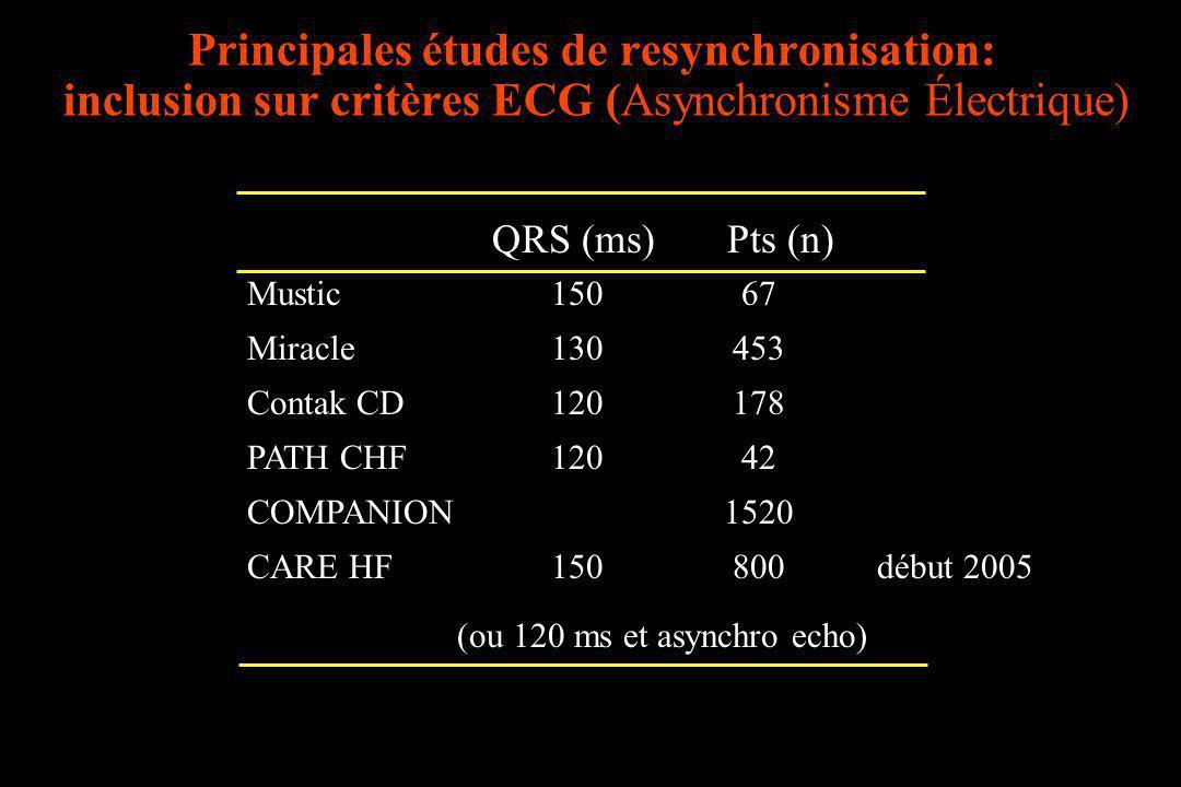 Principales études de resynchronisation: inclusion sur critères ECG (Asynchronisme Électrique) QRS (ms) Pts (n) Mustic 150 67 Miracle 130 453 Contak C