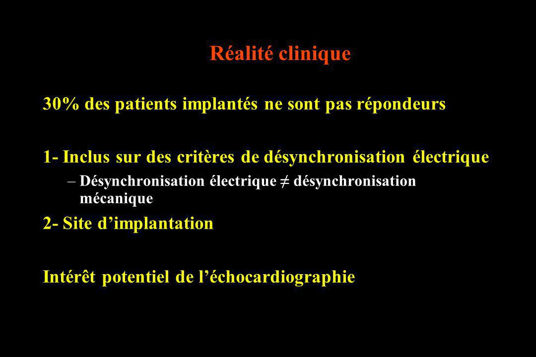 Réalité clinique 30% des patients implantés ne sont pas répondeurs 1- Inclus sur des critères de désynchronisation électrique –Désynchronisation élect