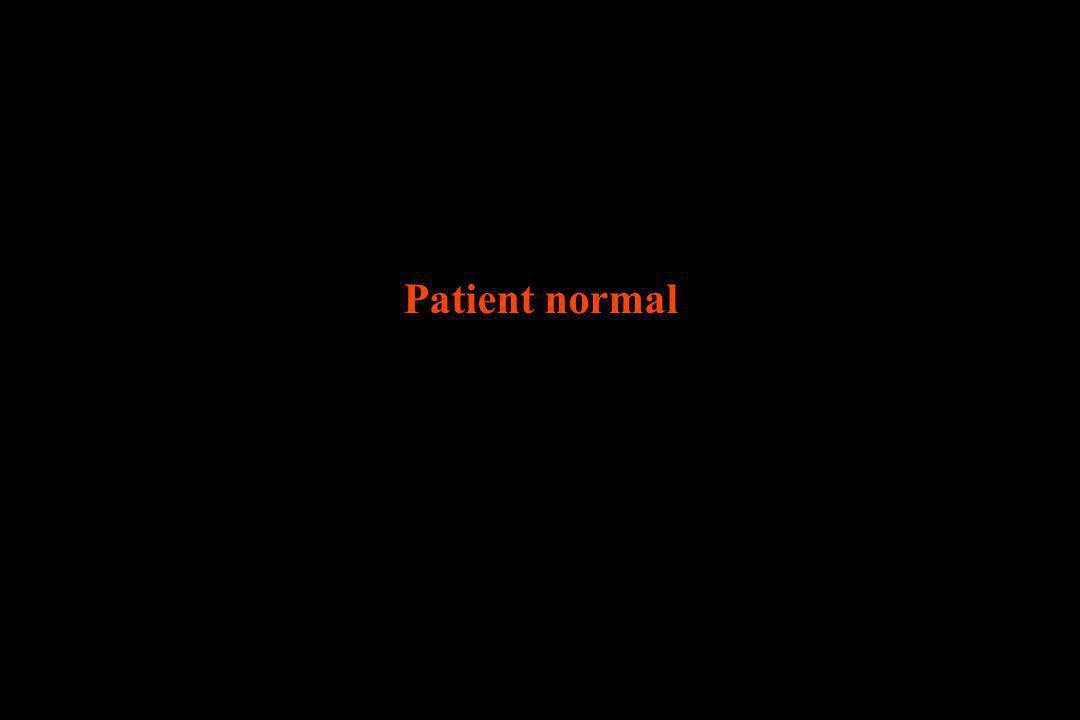 Patient normal