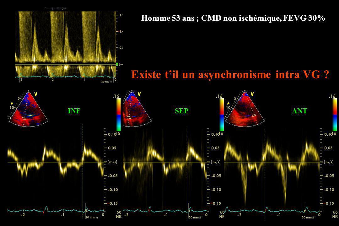 INFSEPANT Existe til un asynchronisme intra VG ? Homme 53 ans ; CMD non ischémique, FEVG 30%
